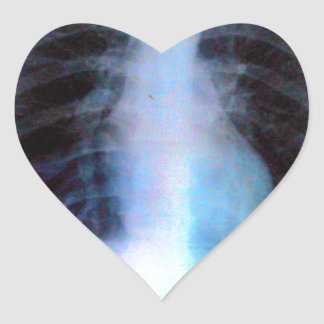 Esqueleto de la radiografía de Ribcage Pegatina En Forma De Corazón