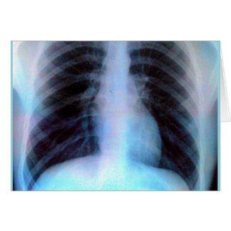 Esqueleto de la radiografía de Ribcage Tarjeta De Felicitación