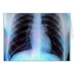 Esqueleto de la radiografía de Ribcage Tarjeton