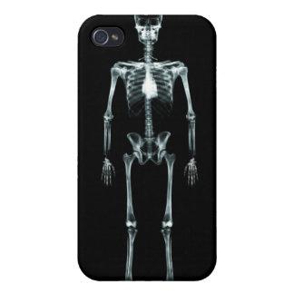 Esqueleto de Vision de la radiografía solo - origi iPhone 4/4S Fundas