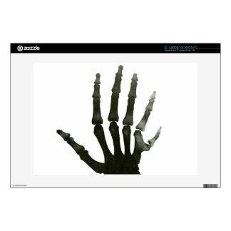 Esqueleto Seis-digitado de la mano de la radiograf Calcomanías Para 33cm Portátiles