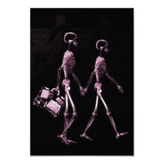 """Esqueletos de Vision de la radiografía de los Invitación 3.5"""" X 5"""""""
