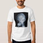 Estudio de caso: Jugador de Roto Tom Camisas