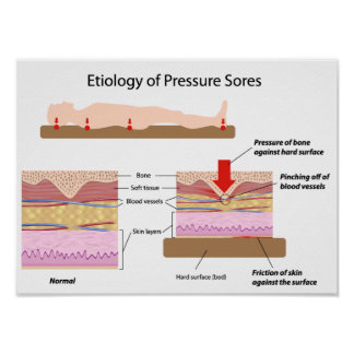 Etiology of pressure sores Poster