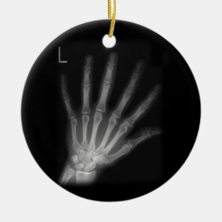 Extra Digit X-ray Left Hand Ceramic Ornament