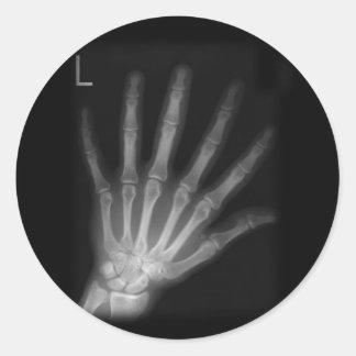 Extra Digit X-ray Left Hand Classic Round Sticker