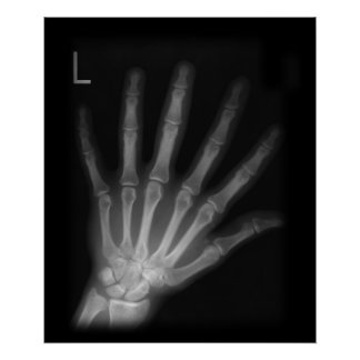 Extra Digit X-ray Left Hand Poster