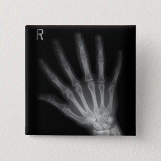 Extra Digit X-ray Right Hand Button