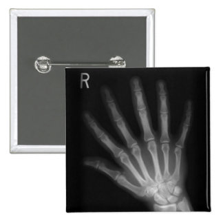 Extra Digit X-ray Right Hand Buttons