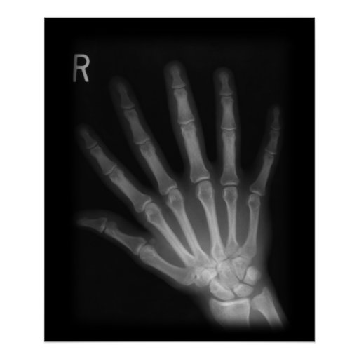 Extra digit x ray right hand poster zazzle for T shirt printing smyrna ga