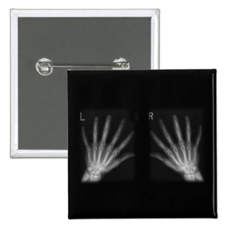 Extra Digit X-ray Right & Left Hands Button