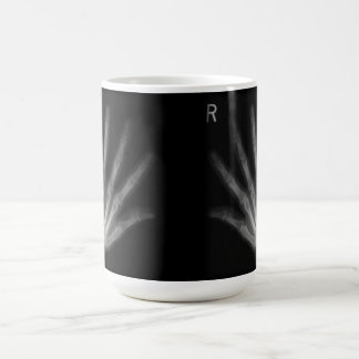 Extra Digit X-ray Right & Left Hands Coffee Mug