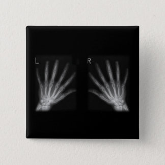 Extra Digit X-ray Right & Left Hands Pinback Button