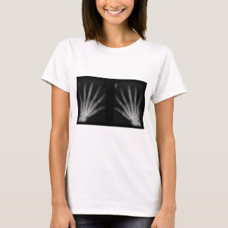 Extra Digit X-ray Right & Left Hands T-Shirt