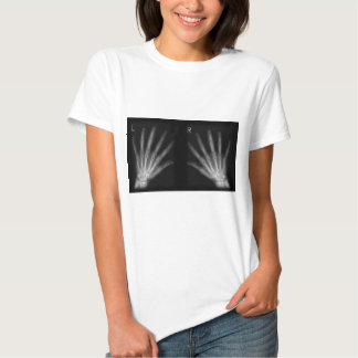 Extra Digit X-ray Right & Left Hands Tee Shirt