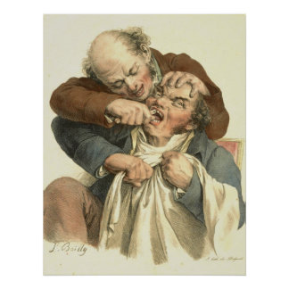 Extracción 1790 del diente póster