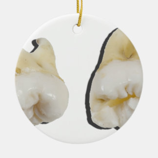 ExtractedWisdomTeeth033113.png Ceramic Ornament