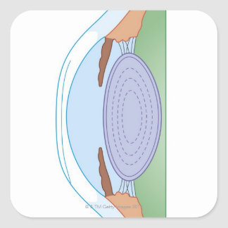 Eye After Corrective Surgery Square Sticker