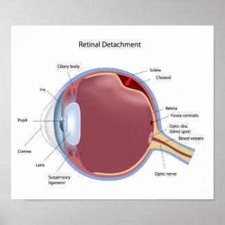 Eye retinal detachment  Poster