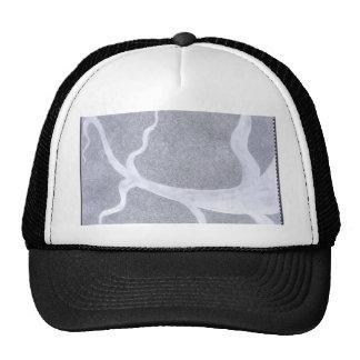 eyevein trucker hat