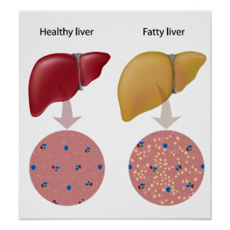 Fatty liver disease Poster