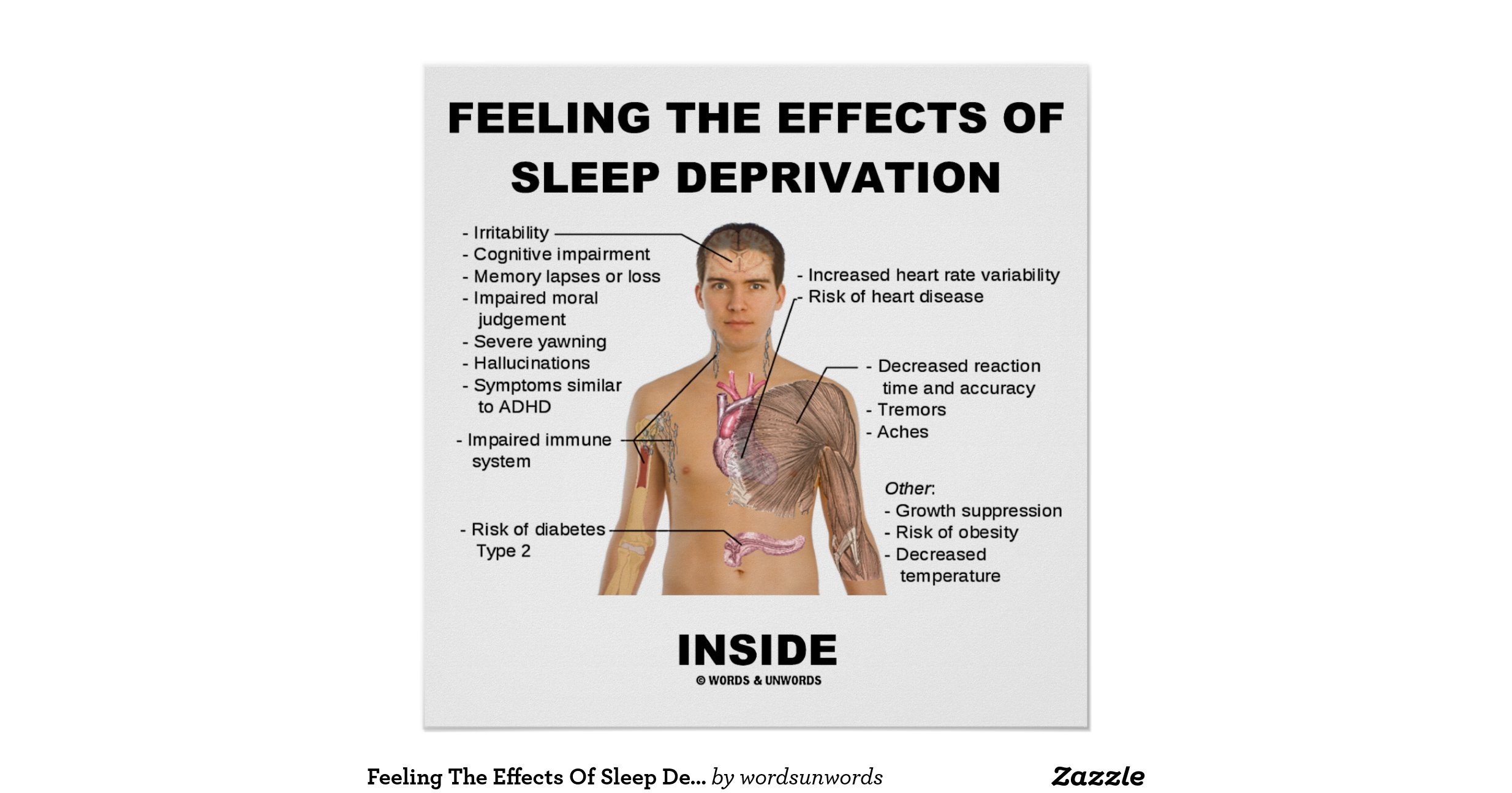 effects of sleep deprivation essay This free health essay on essay: sleep deprivation is perfect for health students to use as an example.