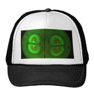 Fertilized frog egg trucker hat