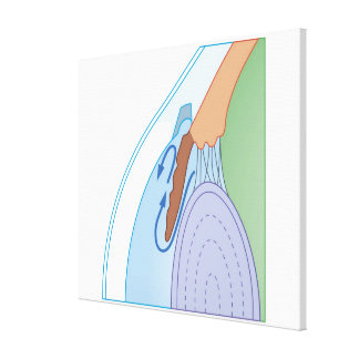 Flujo flúido en glaucoma crónico impresión en lienzo estirada