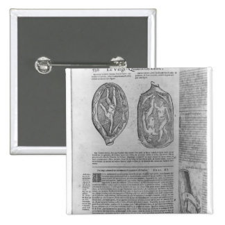Foetus, illustration from 'Oeuvres' Button