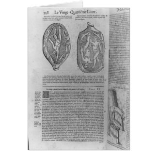 Foetus, illustration from 'Oeuvres' Card