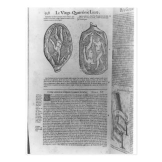 Foetus, illustration from 'Oeuvres' Post Cards