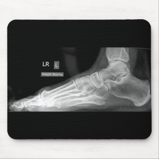 Foot X-ray Mousepad