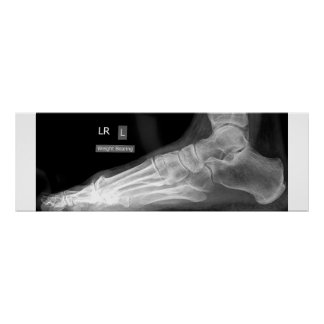 Foot X-ray Poster