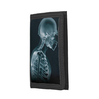 Football Xray Trifold Wallets