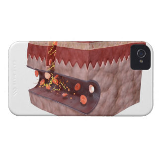 Formación del coágulo de sangre iPhone 4 coberturas
