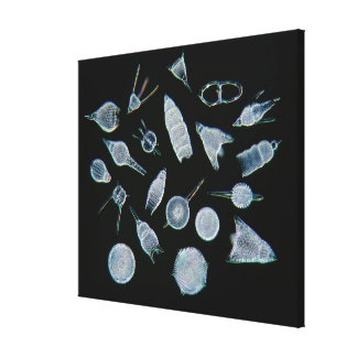Fossil Radiolarian Skeletons Canvas Print