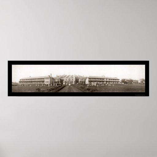 Foto 1912 de Liverpool de la tuberculosis Póster