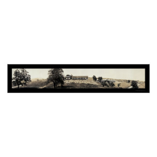 Foto 1918 de Sanitorium de la tuberculosis Poster