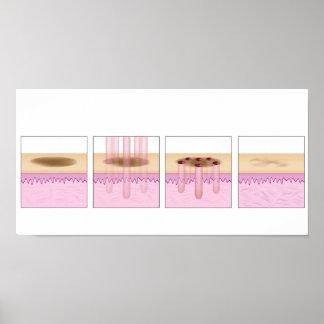 Fractional Laser Skin Resurfacing Poster