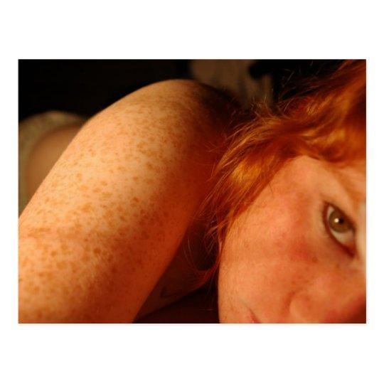 Freckles Postcard