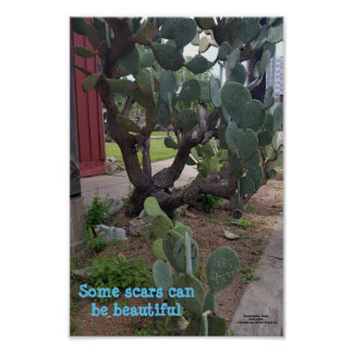 Fredricksburg, Texas. Scars can be beautiful. Poster