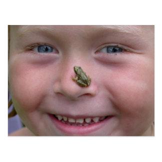 Frog On Nose Postcard