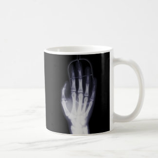 Funny Hand X-ray For internet addictioner Coffee Mug