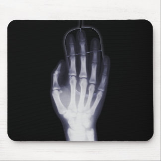 Funny Hand X-ray For internet addictioner Mouse Pad