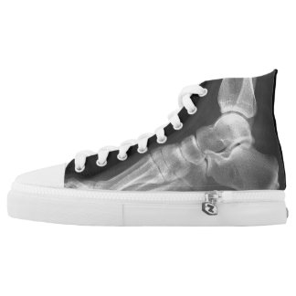 Funny Lateral Foot Xray High-Top Sneakers