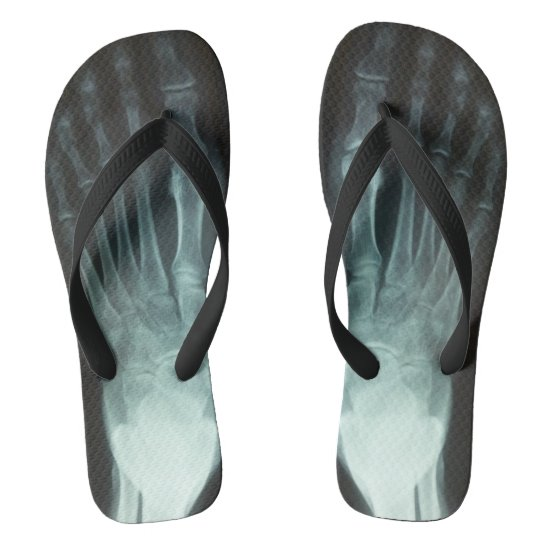 Funny X-Ray Black and White Novelty Flip Flops