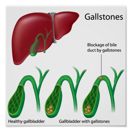 Gallstones and Liver Poster