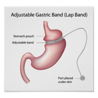 Gastric Band Weight Loss Surgery  Poster