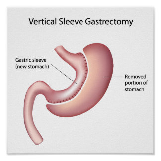 Gastric sleeve weight loss surgery Poster