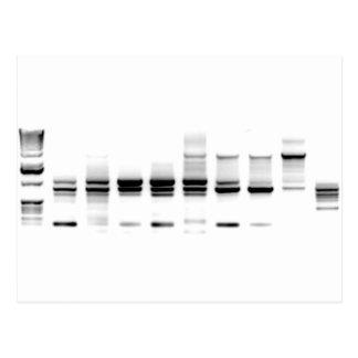 Gel de la DNA Tarjeta Postal